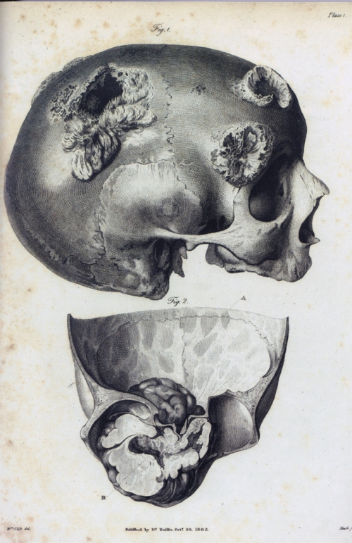 anatomy skulls with diseases
